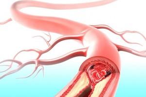 都占陶主任谈为什么你会得动脉粥样硬化4种原因中医告知你怎样调