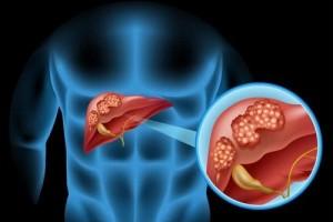脂肪肝渐渐的变成了肝癌病发的重要的要素