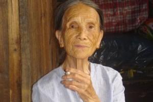 70岁婆婆跌倒后骨折营养师主张常吃2白喝1饮骨龄年青20岁