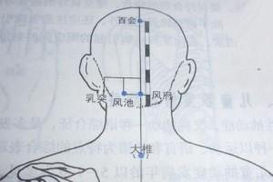 金艾灸——颈椎病要好好艾灸