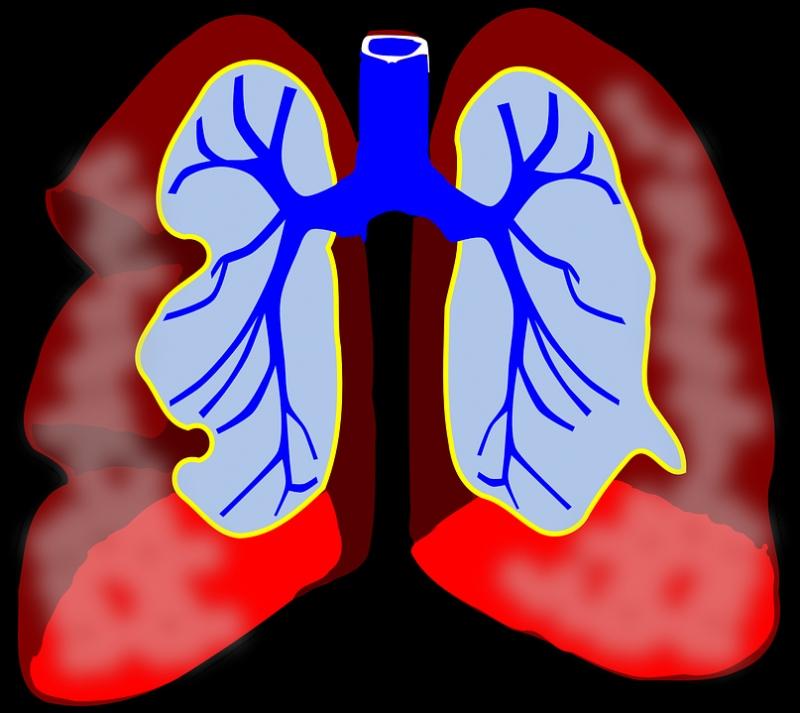 左上肺炎症发病原因左上肺炎症应该注意的几点日常须知