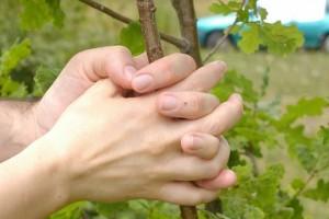 手指烫伤后感染怎么办如何处理被烫伤